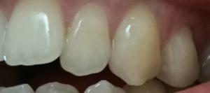 【實測14天】美國 Crest 牙膏真的有用嗎?牙齒美白推薦